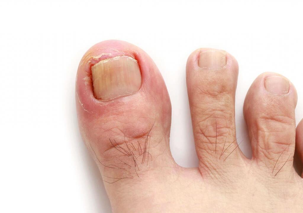 Le bouton des pieds le microorganisme végétal avec léclairage