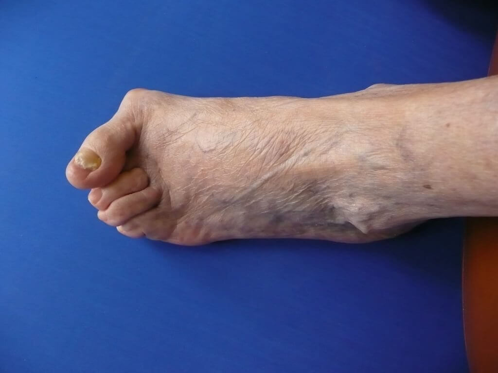 Bunions and Hammer Toes