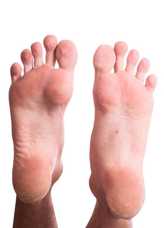 Foot Corn and Callus
