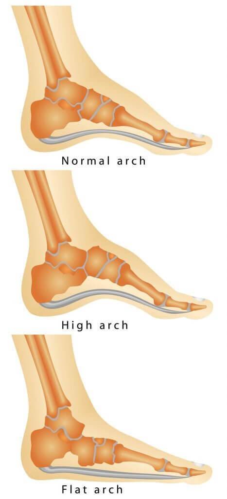 High-arched feet