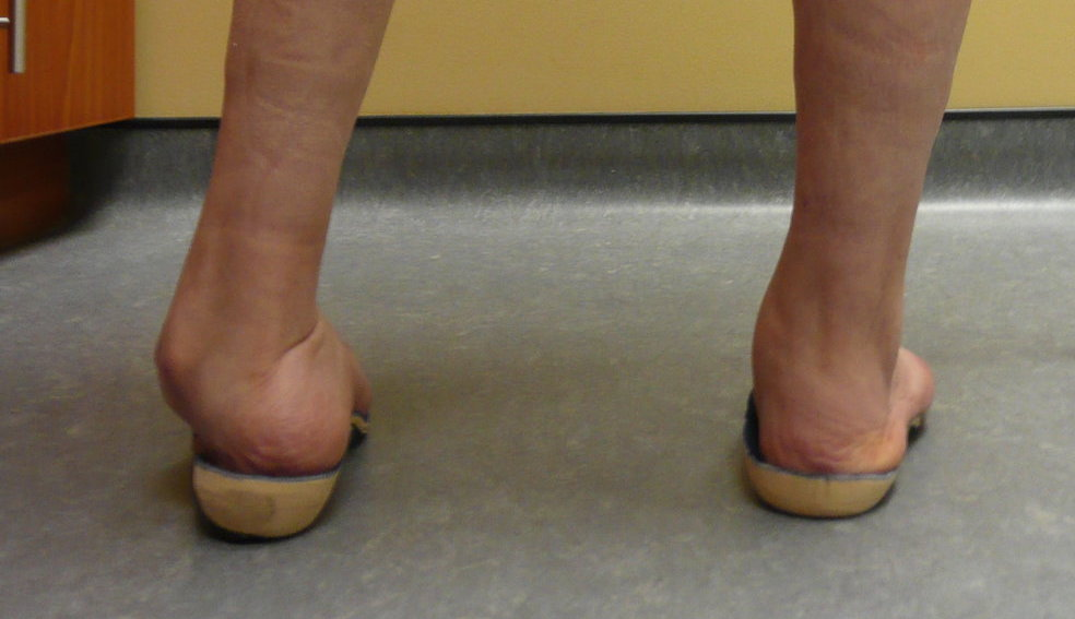 Orthoses for Sick Patients
